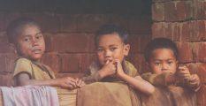 Anak Kekurangan Gizi